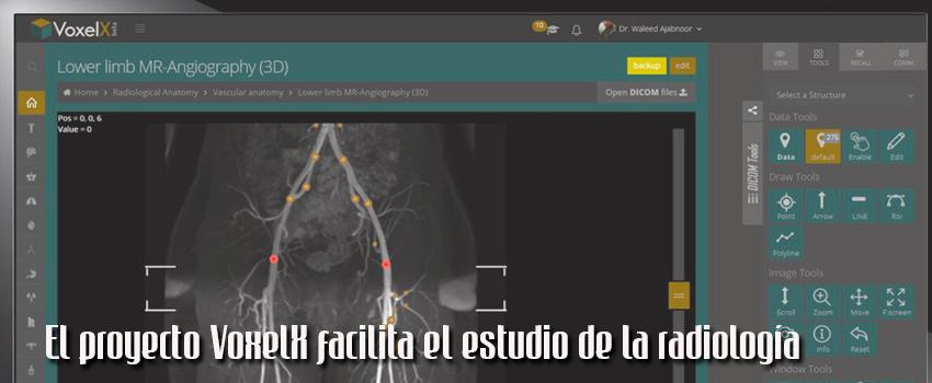 Proyecto Voxel X para mejorar el estudio de la radiología